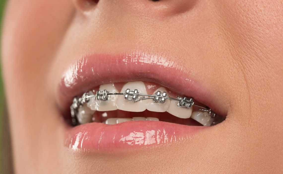 Best Ways to Prepare Yourself for Braces